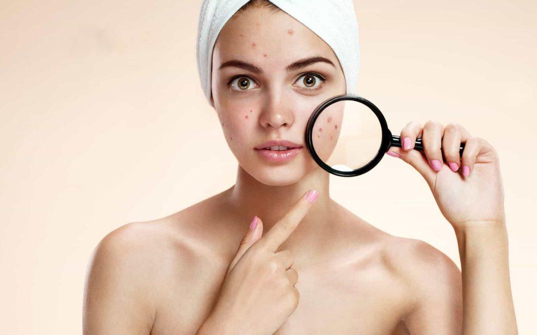 Che crema usare per le macchie sul viso